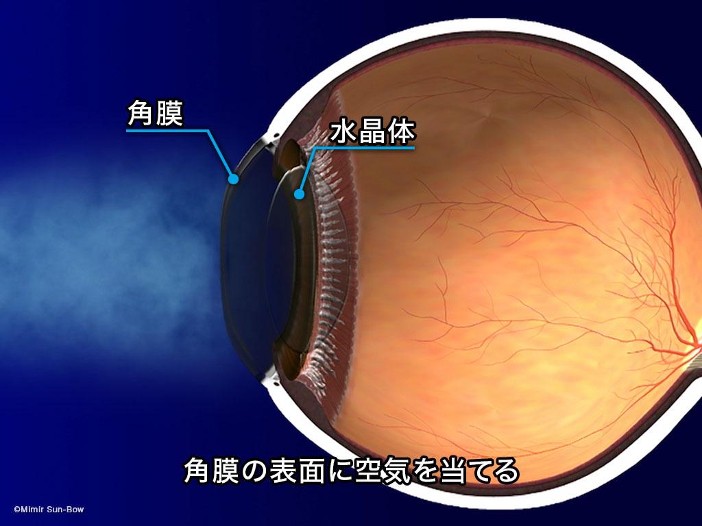 [IMG]ノンコンタクト眼圧計-2
