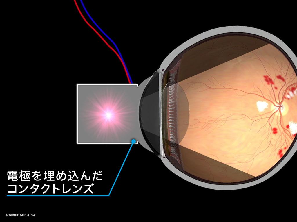 [IMG]網膜電図(ERG)-1