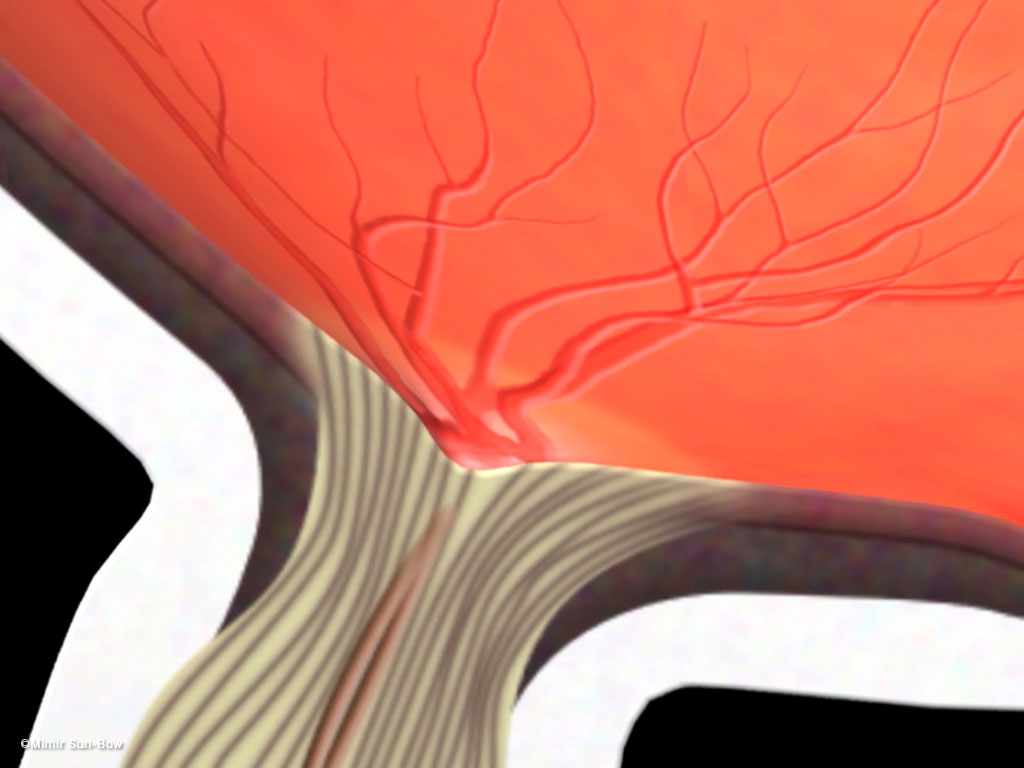 [IMG]眼圧上昇と視神経乳頭-2
