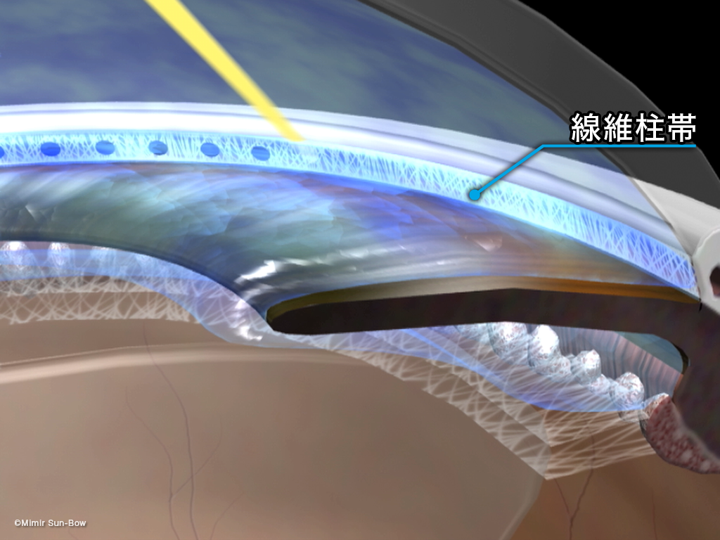 [APNG]レーザー線維柱帯形成術