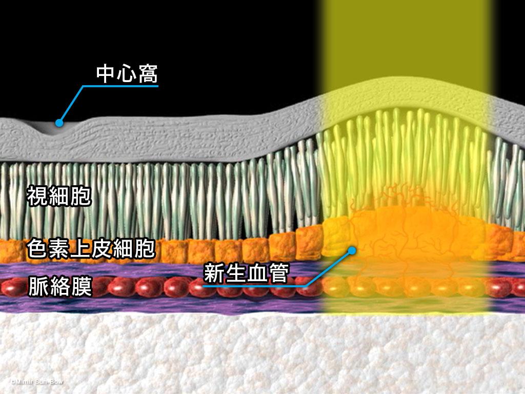 [IMG]レーザー光凝固療法-2