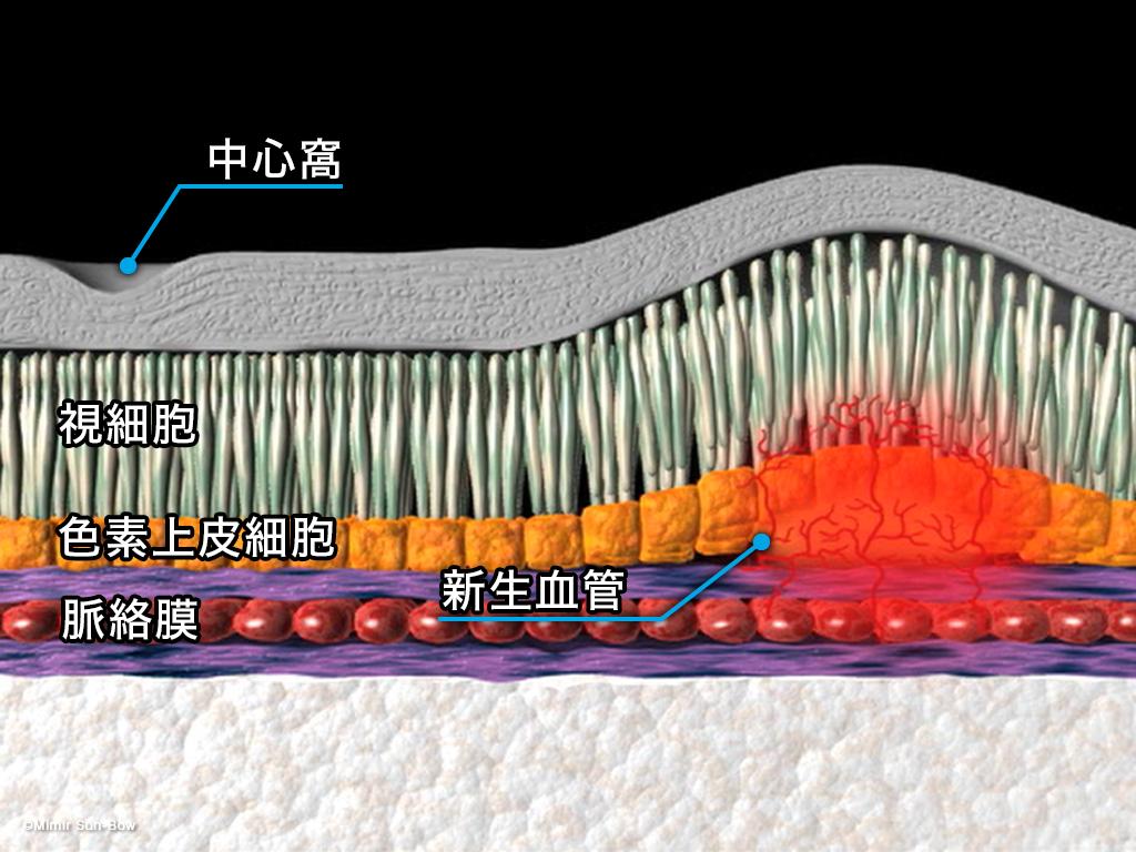 [APNG]レーザー光凝固療法