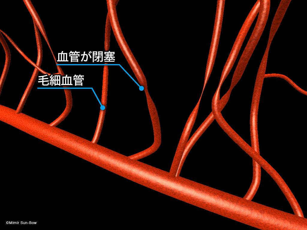 [IMG]毛細血管/変形・瘤・出血-1