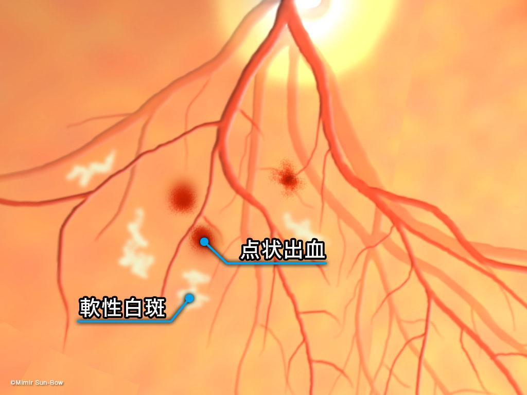[IMG]点状出血・軟性白斑