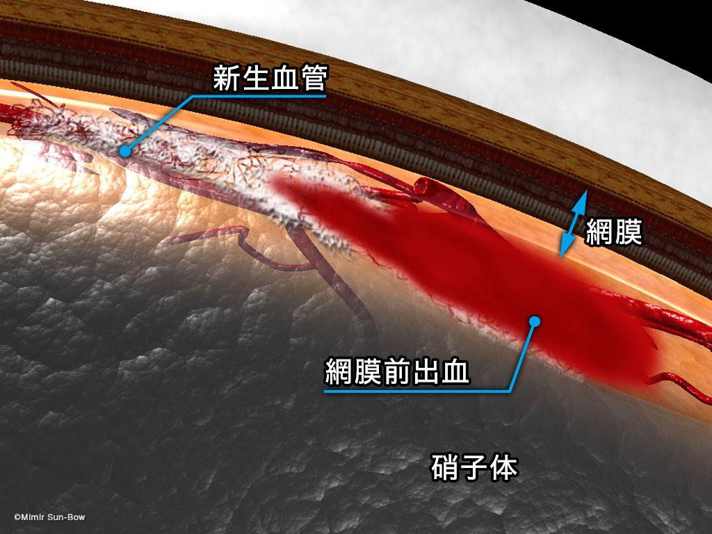 [IMG]線維血管膜と網膜前出血-2