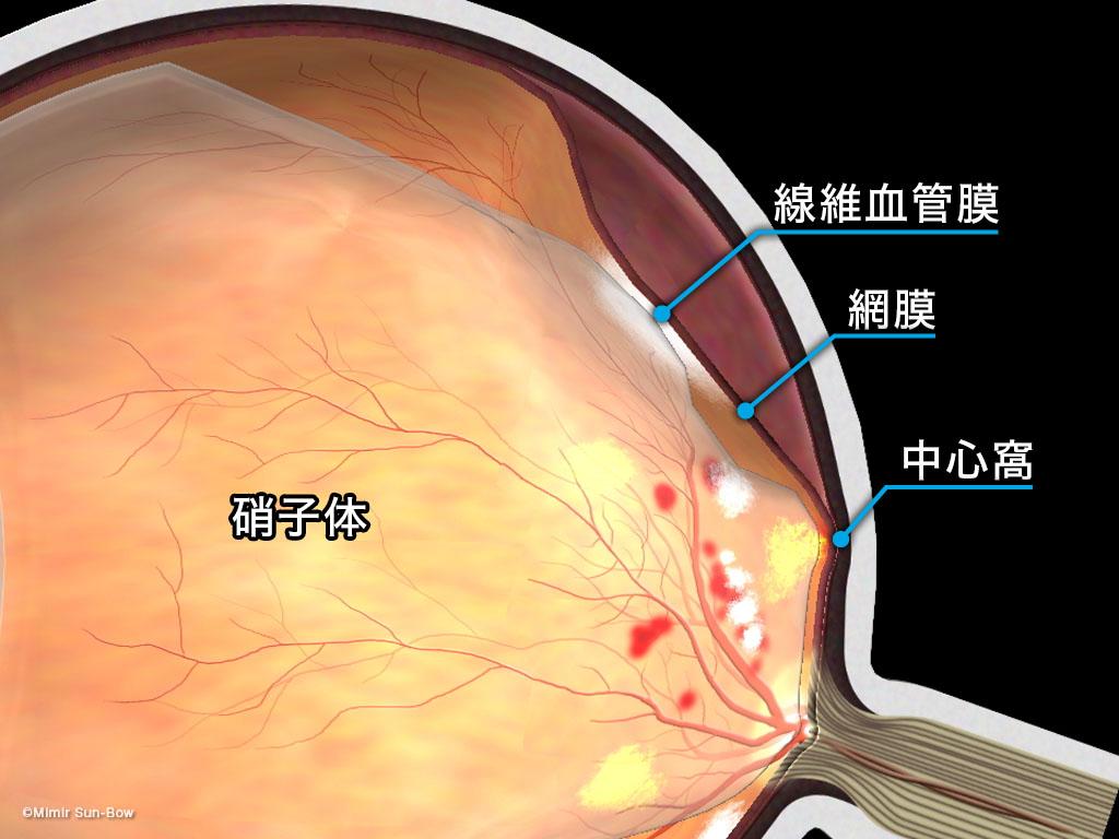 [IMG]牽引性網膜剥離-2