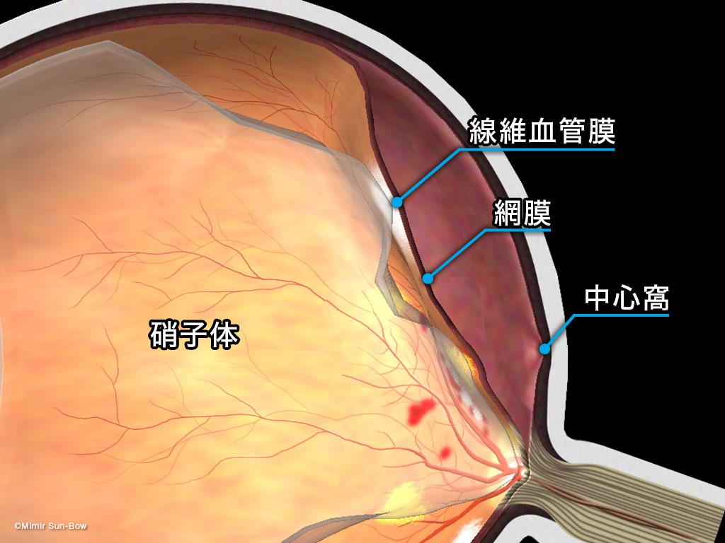 [IMG]牽引性網膜剥離-3