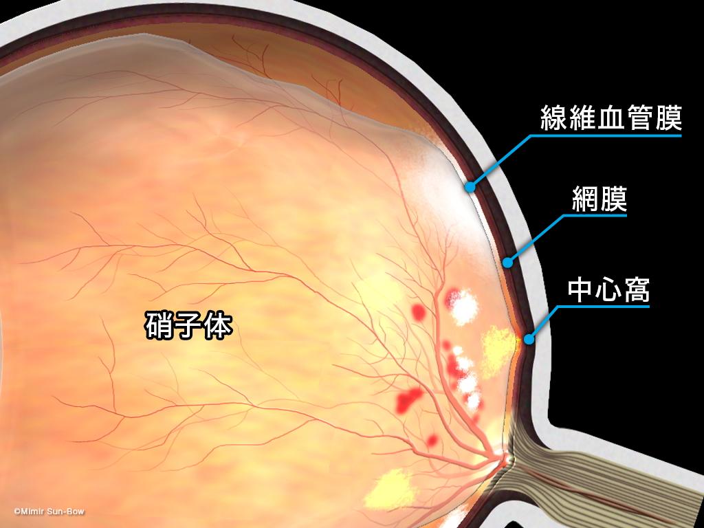 [APNG]牽引性網膜剥離