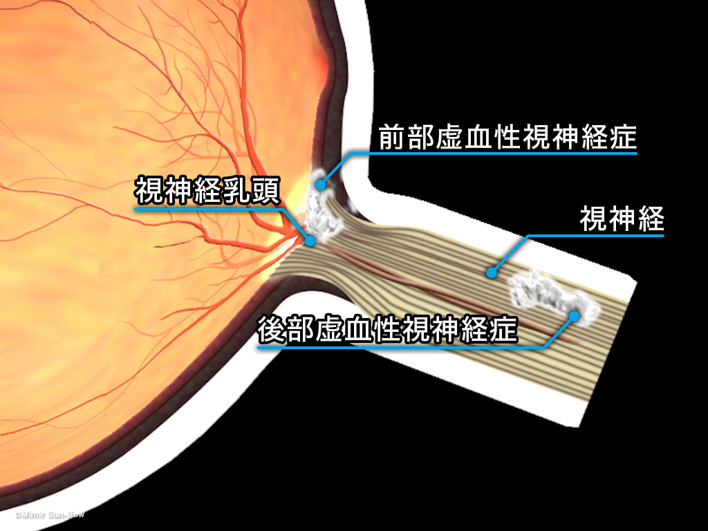 [IMG]虚血性視神経症-2