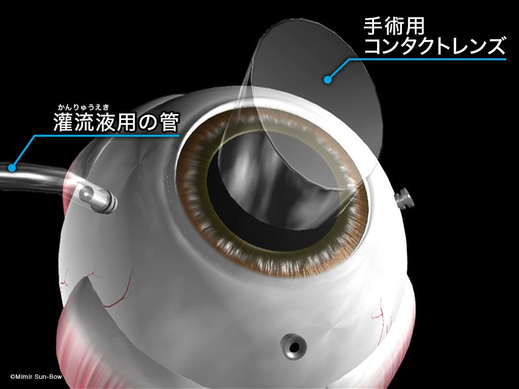 [IMG]硝子体手術準備-5